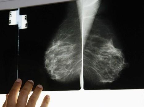 Cancer du sein: une étude accable les mammographies de routine - Rue89 | Cancer mensonges & propagande | Scoop.it