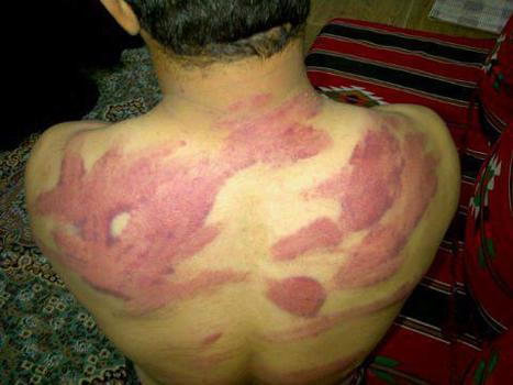 See the marks of torture on a former Bahraini detainee | Human Rights and the Will to be free | Scoop.it
