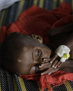Child malnutrition stalls Africa growth « BredaNews | Sustainable Nutrition | Scoop.it
