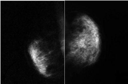 ¿Sirven de algo las mamografías preventivas? | Información del medicamento | Scoop.it