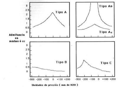 Timpanometría. Estudio de la compliancia o admitancia del tímpano. | El sentido de la audición | Scoop.it