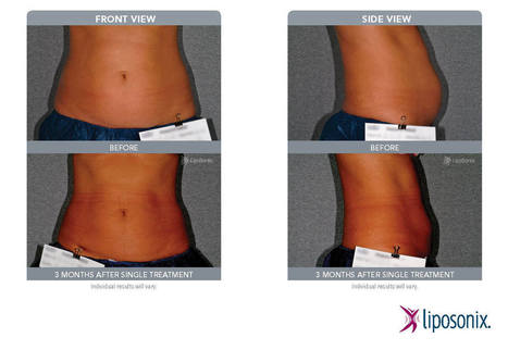 Liposonix – ONE treatment ONE dress size ONE hour | London Women | Scoop.it