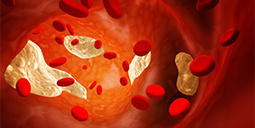 Cholesterol-lowering statins explained - Health & Wellbeing | Cardiovascular Disease News | Scoop.it