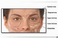 Treatment for Blepharospasm: Blepharospasm Treatment   HEALTH   Scoop.it