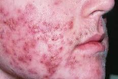 Simple Means to circumvent and have Rid of Back Acne breakouts | How to Get Rid of Cystic Acne | Scoop.it