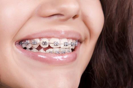 Do Orthodontic Treatment Make the Teeth Weak   Dental Care   Scoop.it