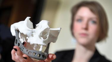Une mâchoire artificielle créée grâce à l'imagerie 3D | Belgitude | Scoop.it