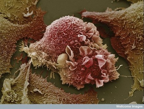 parp inhibitors for brca+ women with gynecological cancers | cancer advocacy | Scoop.it