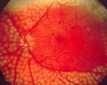 Eye Disease in Type 1 Diabetes Avoided, But How and Why? | Diabetes Counselling Online | Scoop.it