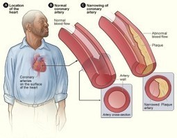 What Is The Big Problem With Elevating Your High Density Lipoprotein?... | Choleslo | Scoop.it