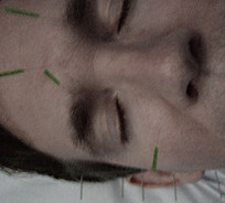 Acupuncture for Depression | Clinical Psychology | Scoop.it