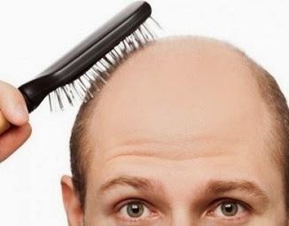 How do they do hair transplants?   Hair Transplant Dubai   Scoop.it