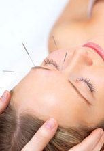 Acupuncture and Herbs for Stroke - New Study - HealthCMI   Acupuncture and Chinese Medicine   Scoop.it