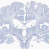 Scientists Digitize Psychology's Most Famous Brain - Wired   Brain Injury Awareness   Scoop.it