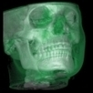 CBCT and CAD/CAM: We want it all and we want it now! | 3D Maxillofacial Imaging | Scoop.it