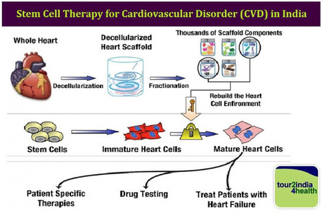Stem Cell Therapy for Cardiovascular Disorder in India with Tour2India4Health | Surgical India: Acess the various networks of surgical platforms established in India | Scoop.it