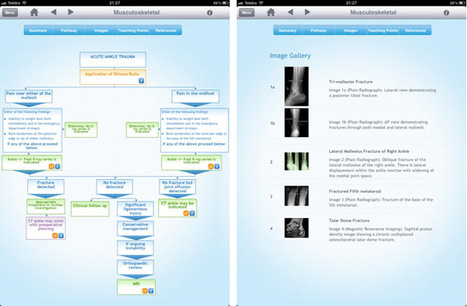 Diagnostic Imaging Pathways App for iPad – Medgadget.com -- Internet Journal of Emerging Medical Technologies | Biomarkers and Personalized Medicine | Scoop.it