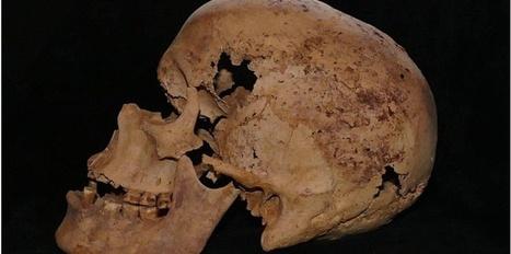 Des signes de cancer découverts sur un squelette d'Egypte ancienne | Archéologie dernières brèves | Scoop.it