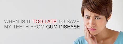 When Is It Too Late To Save My Teeth From Gum Disease | BangkokDental | Scoop.it