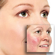 The Face of Rosacea | Skin Care | Scoop.it