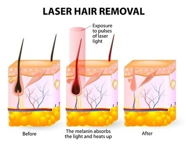 Laser Hair Removal Singapore (FAQs) | Aesthetic Clinic Singapore | Scoop.it