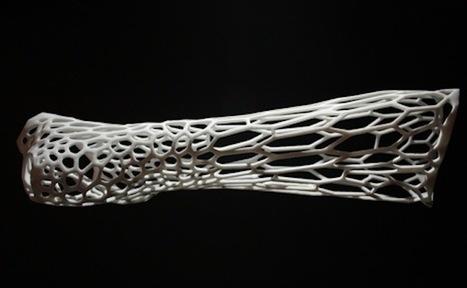 Impression 3D: Cortex réinvente le traitement des fractures osseuses   Solutions locales   Scoop.it