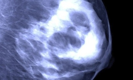 Test could help prevent unnecessary breast cancer treatment, say scientists | Breast Cancer News | Scoop.it
