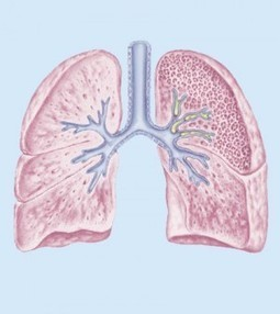 Blocked Airways Lungs - Causes, Symptoms And Classification | Blood Disorders | Scoop.it