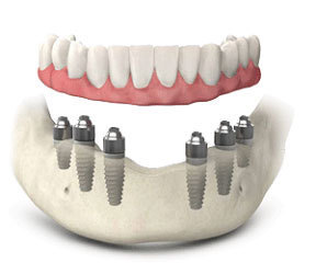 Full mouth Dental Implant Treatment in United Kingdom | Dental implant treatment | Scoop.it