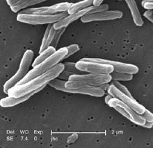 New compound excels at killing persistent and drug-resistant tuberculosis | HSC Biology | Scoop.it