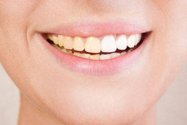 Foods that cause tooth discolouration - Times of India | How to Make Whiter Teeth | Scoop.it