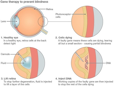 Gene therapy could be used to treat blindness: Sight restored to partially blind patients | Amazing Science | Scoop.it