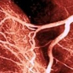 ESC Trials: The Best And TheWorst | Heart diseases and Heart Conditions | Scoop.it