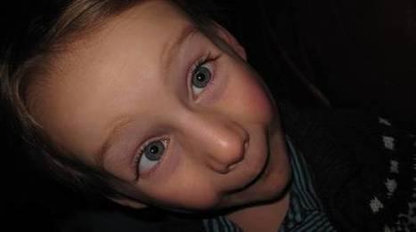 El estrabismo de los niños | PRODUCTOS NATURALES | Scoop.it