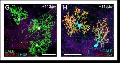Scientists have grown functioning cerebellum-like brain tissue in the lab | Stem cell news | Scoop.it