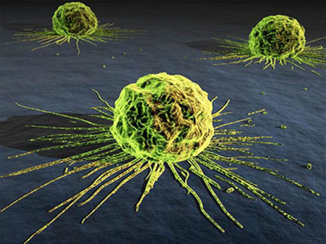 Why #Medicine Won't Allow #Cancer to Be Cured | Unthinking respect for authority is the greatest enemy of truth. | Scoop.it