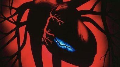 Major heart healing trial starts | English | Scoop.it