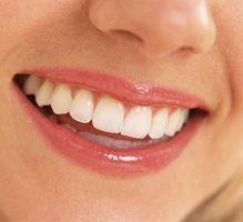 Dental Implants at Adhp.com   Dental Care   Scoop.it