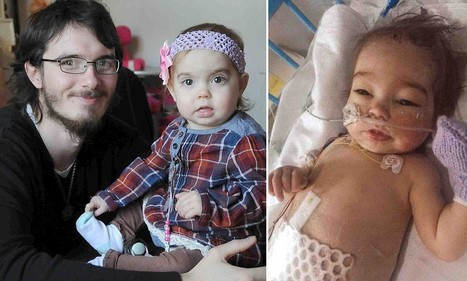 Baby fighting for her life is saved after her uncle donates half of his liver - Daily Mail | LIVER HEALTH----IT'S MORE IMPORTANT THAN YOU KNOW-- | Scoop.it