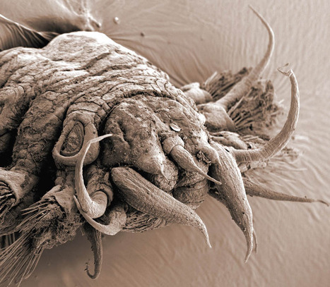 Incredible Examples of Electron Microscope Photography | Amazing Science | Scoop.it