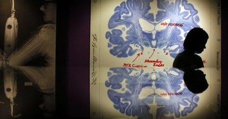 """4 ways to improve your brain health (""""caring for the brain is simple and practical"""")   Live Healthy   Scoop.it"""