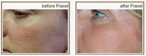 Laser Skin Tightening treatment in sydney   facialrejuvenation   Scoop.it