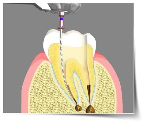 Root canal Riverside, Root Canal Treatments in Riverside | dentist | Scoop.it