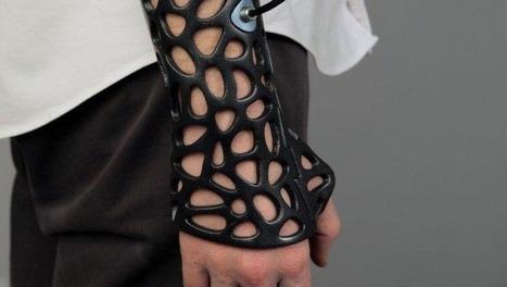 Impression 3D d'un plâtre à ultrasons | Objets intelligents, smart systems et Internet des objets | Scoop.it