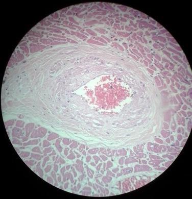 Curso de Histopatología Forense de Salamanca   amplia-mente   Scoop.it