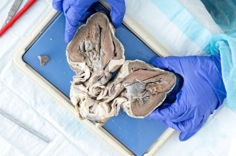 Organs For Human Transplant Are Being Grown Inside Sheep And Pigs | IELTS, ESP, EAP and CALL | Scoop.it