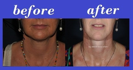Isolated Necklift Photos Thailand | Bangkok Aesthetic Surgery Center | The Best Plastic Surgery Clinic In Thailand | Scoop.it
