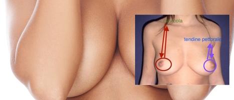 Sollevamento del seno con fili di sospensione - Dr. Martinelli | Chirurgia Plastica News | Scoop.it