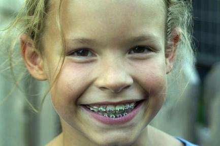 Orthodontie : les bonnes résolutions à prendre cette année - News Santé - Doctissimo | Fédération Française d'Orthodontie | Scoop.it