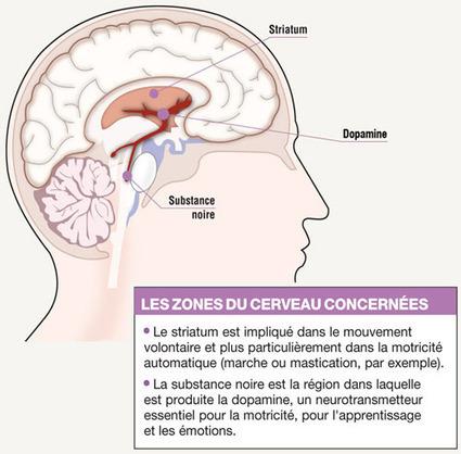 La maladie de Parkinson affecte 15000 Suisses / Ma santé au quotidien / Mag santé - Planète Santé | la neurologie  dossier 3° | Scoop.it